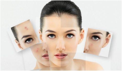 facial acne-aha-101