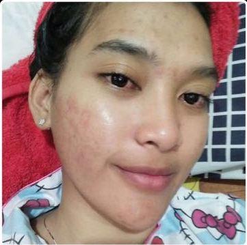Testimoni_acne_2